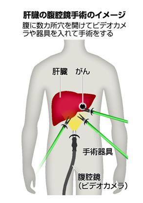 肝臓の腹腔鏡手術のイメージ