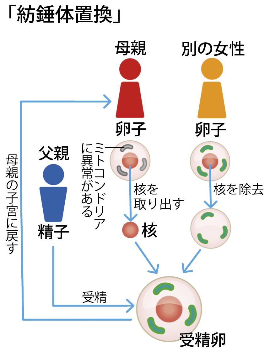 もうひとつのミトコンドリア置換、紡錘体置換(卵子核移植)