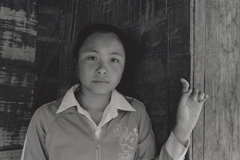 写真・図版 : ヌット(15)は通学途中に焚き火で温まっていた時、不発弾が爆発した。「気がついたら倒れて、体中が痛く、左手と左膝に後遺症が残る。字を書くのが不自由だが、将来は看護婦になりたい」(ラオス・ホアパン県、2008年)©Yoshino Oishi