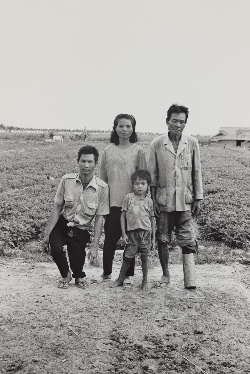 写真・図版 : 農婦ノン(28)の父ルック(68)は南政府軍に徴兵され左脚を失った。夫バン・エバン(35)は枯葉剤の影響を受け、息子トゥイ(8)の背骨は歪む(ベトナム・タイニン省、1995年)©Yoshino Oishi