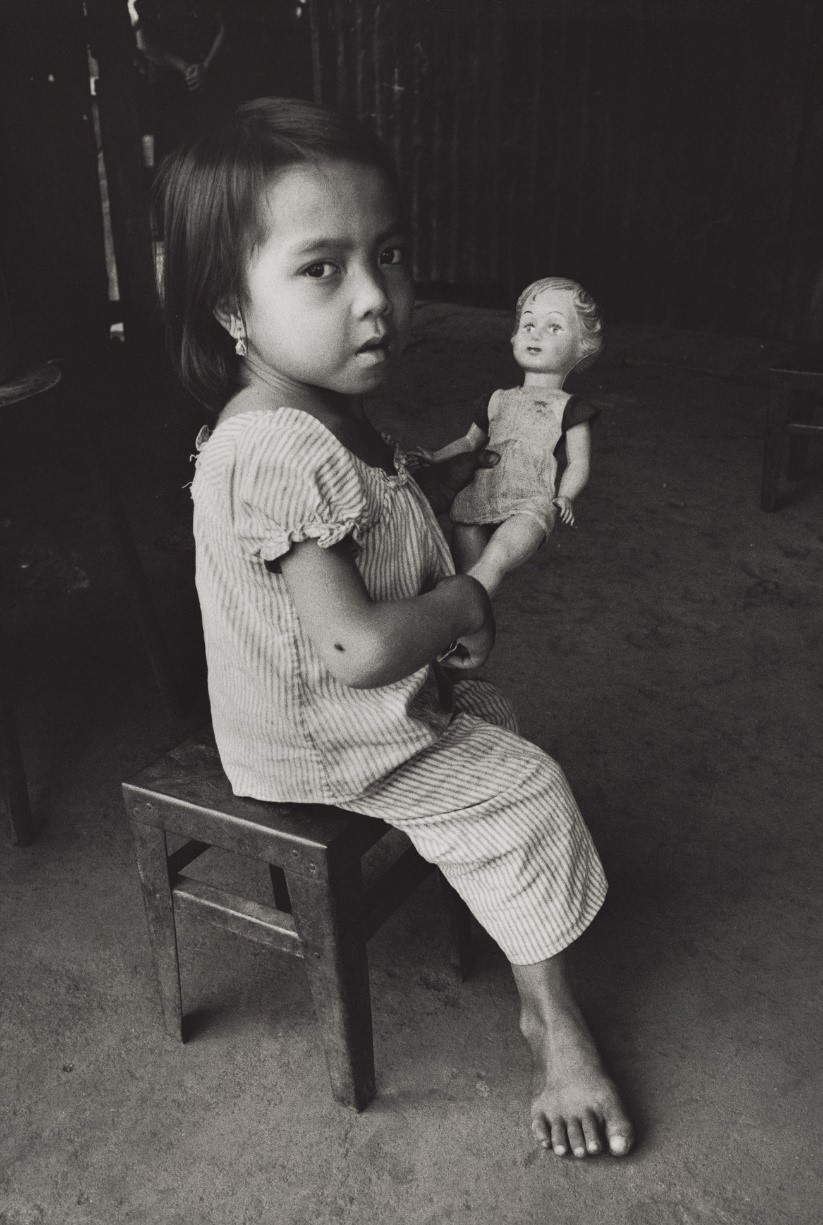 幼児ほどの背丈と知能しかないトゥー(14)の父は南政府軍に徴兵され、森の戦闘で枯葉剤を浴びた(ベトナム・ソンべー省、1987年)©Yoshino Oishi