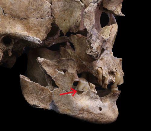 写真・図版 : 23号人骨の臼歯(赤矢印)からDNAを抽出した