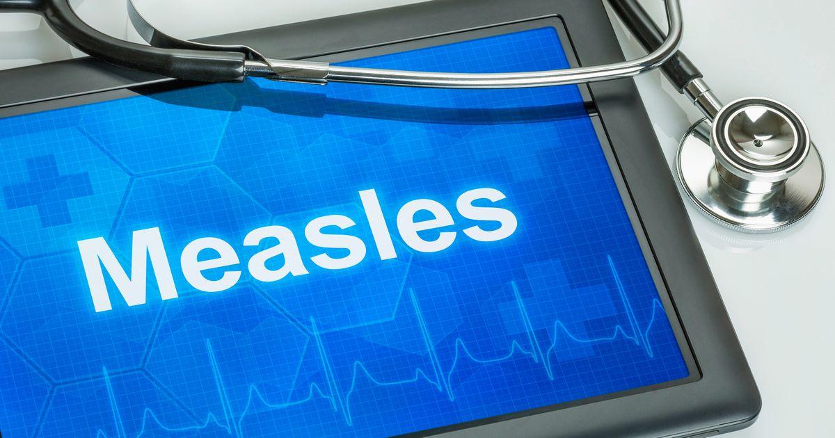 写真・図版 : はしか(measles)の流行が問題になっている=Zerbor/Shutterstock.com