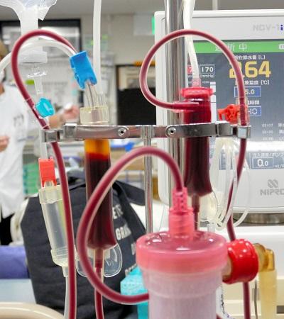 写真・図版 : 人工腎臓をめぐる透析患者の血液=浜田陽太郎撮影