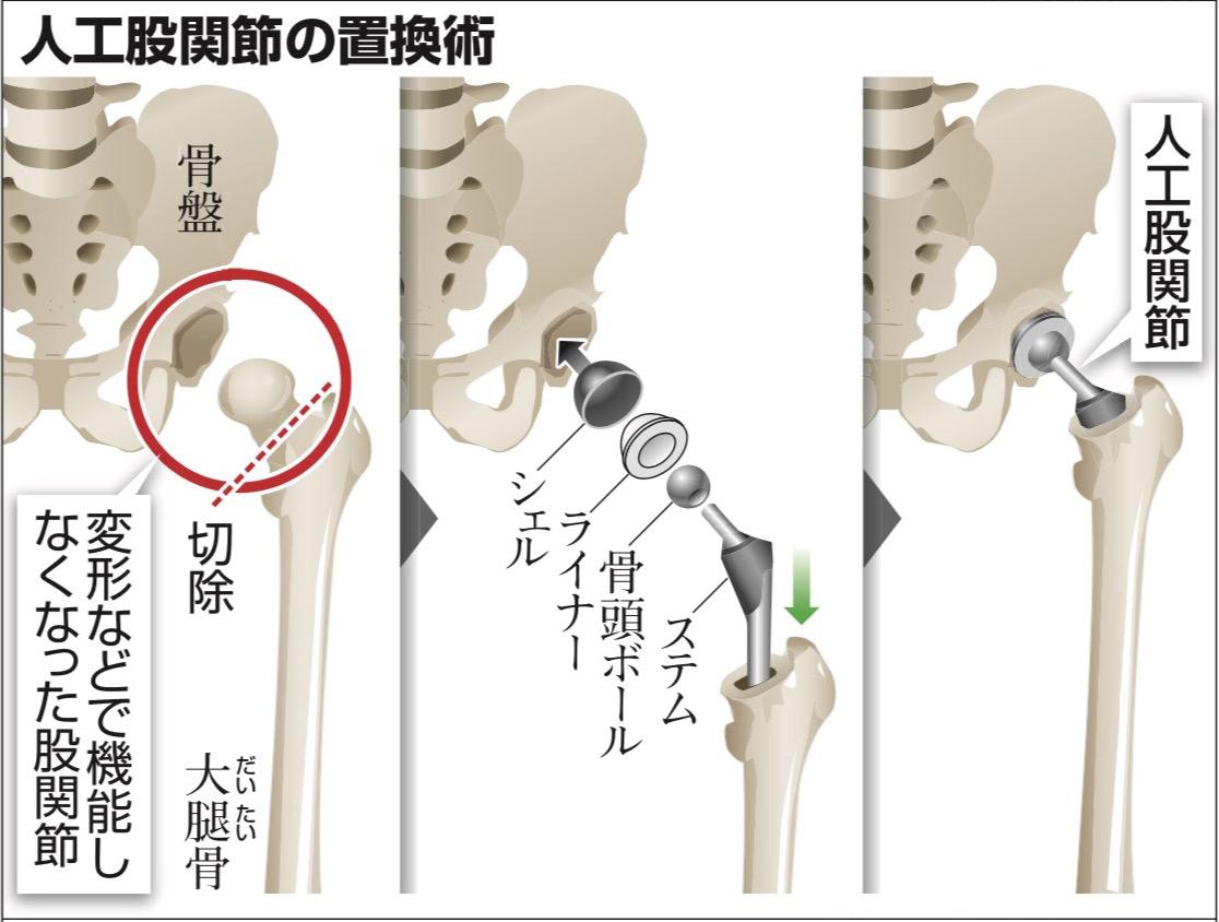 写真・図版 : 人工股関節の置換術の例