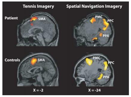 写真・図版 : 脳画像の例。交通事故で脳が損傷され、「植物状態」と診断された患者の脳(上)と健常者の脳(下)。刺激に対し何の反応もないように見えても、脳の中では健常者と同じような活動がある場合がある=Owen 2006 Science
