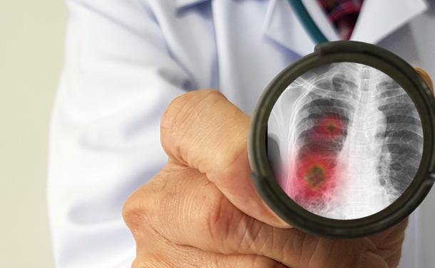 新型コロナによる肺炎は移植患者の感染症に酷似